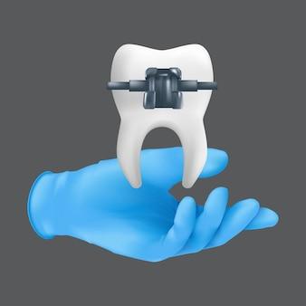 Ręka dentysty w niebieskiej rękawicy chirurgicznej trzymająca ceramiczny model zęba z metalową klamrą. realistyczna ilustracja koncepcji leczenia ortodontycznego na białym tle na szarym tle