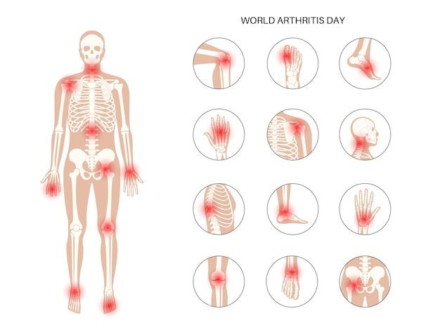 Reumatoidalne zapalenie stawów, ból, koncepcja choroby kości.