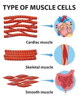 Rodzaj komórek mięśniowych