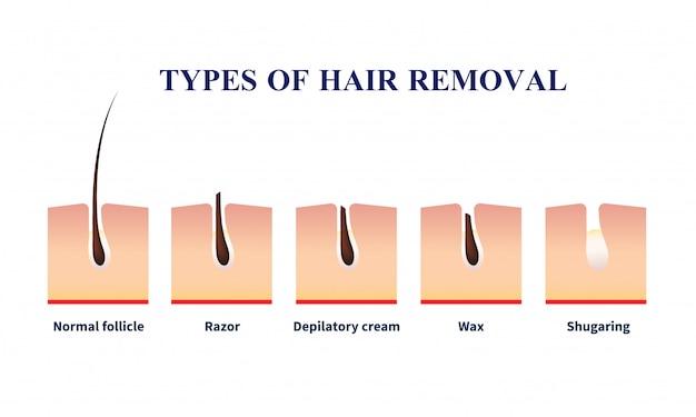 Rodzaje ilustracji usuwania włosów