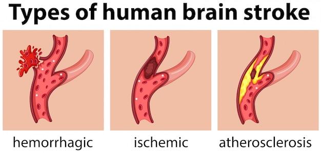 Rodzaje udaru mózgu człowieka