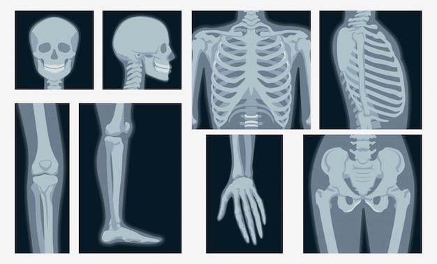 Różny promieniowanie rentgenowskie strzał części ciała ludzkiego ustalona płaska ilustracja