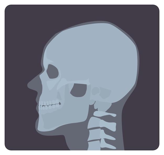Rtg boczne czaszki. zdjęcie rentgenowskie lub zdjęcie radiologiczne głowy, widok z boku. nowoczesna radiografia medyczna a układ kostny człowieka. ilustracja wektorowa monochromatyczne w stylu płaskiej kreskówki.