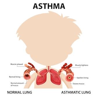 Schemat astmy oskrzelowej z prawidłowym i astmatycznym płucem