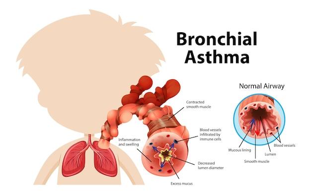 Schemat astmy oskrzelowej z prawidłowymi i astmatycznymi drogami oddechowymi