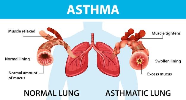 Schemat astmy z prawidłowym i astmatycznym płucem