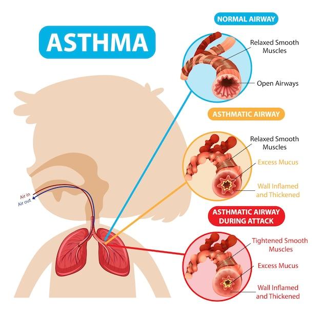 Schemat astmy z prawidłowymi i astmatycznymi drogami oddechowymi