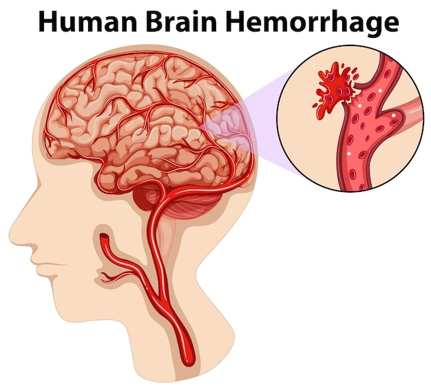 Schemat krwotoku ludzkiego mózgu