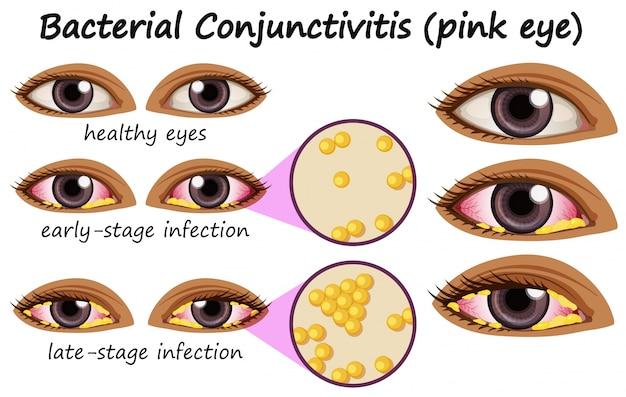 Schemat przedstawiający bakteryjne zapalenie spojówek w oku ludzkim