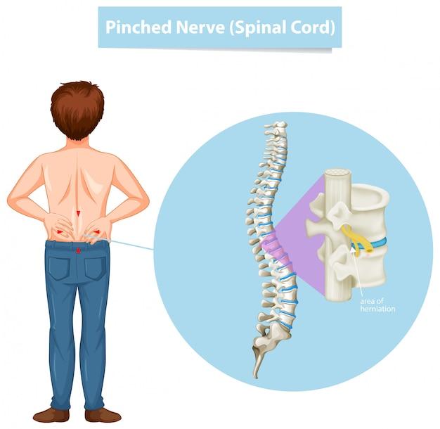 Schemat przedstawiający człowieka i uszczypnięty nerw