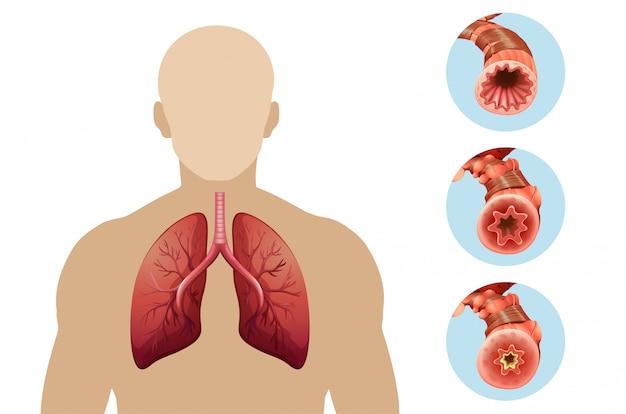 Schemat przedstawiający przewlekłą obturacyjną chorobę płuc