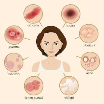 Schemat przedstawiający różne choroby