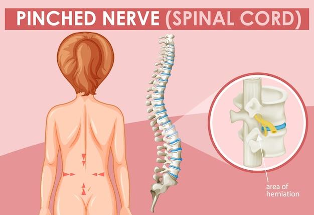 Schemat przedstawiający ściśnięty nerw u człowieka