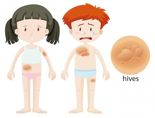 Schemat przedstawiający ule chłopca i dziewczynki