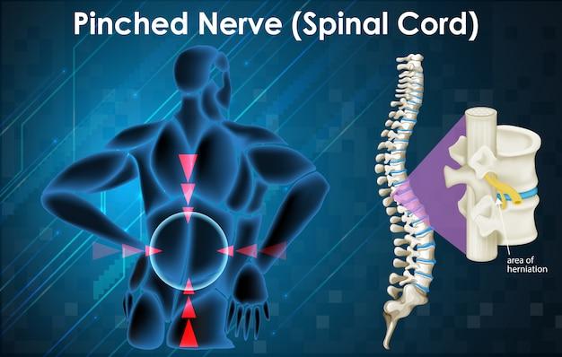 Schemat przedstawiający uszczypnięty nerw na człowieku