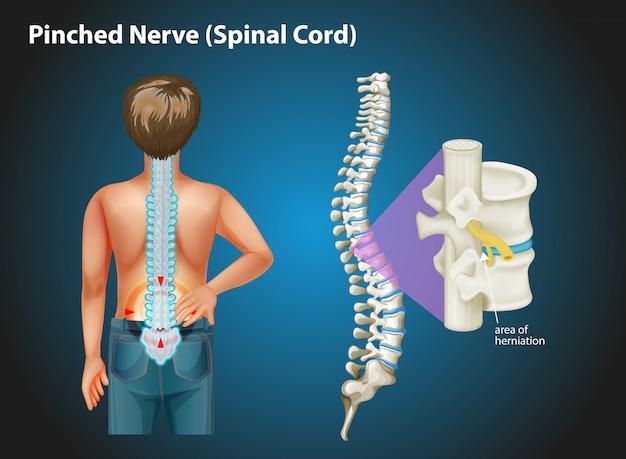 Schemat przedstawiający uszczypnięty nerw u człowieka