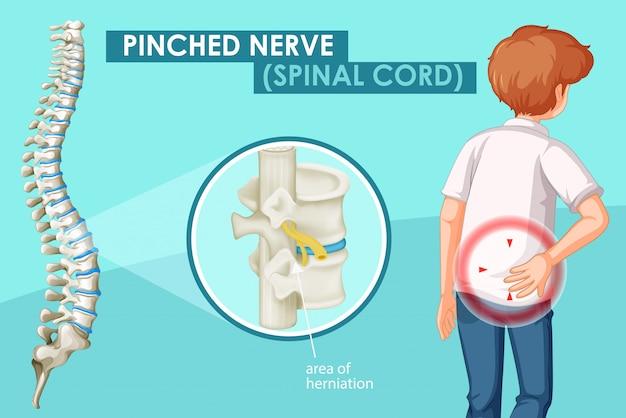 Schemat przedstawiający uszczypnięty nerw