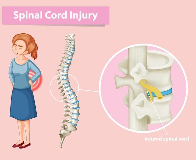 Schemat przedstawiający uszkodzenie rdzenia kręgowego u człowieka