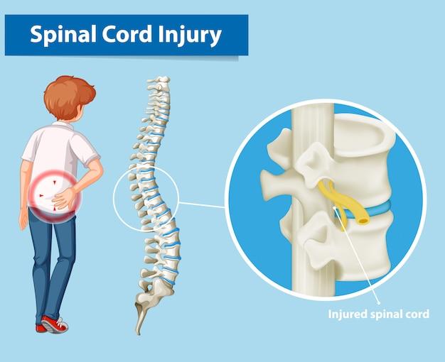 Schemat przedstawiający uszkodzenie rdzenia kręgowego