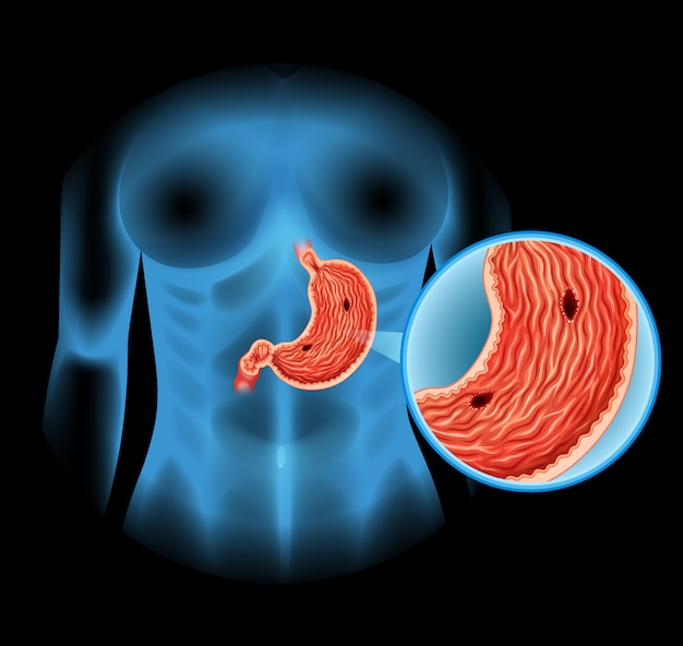 Schemat wrzodu żołądka u człowieka