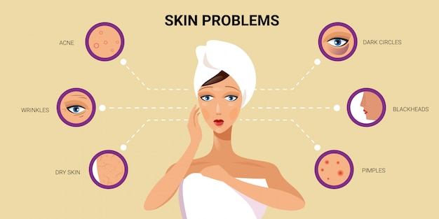 Skóra twarzy pryszcze trądzik różne typy na twarzy kobiety pory zaskórniki kosmetologia problemy z pielęgnacją skóry koncepcja płaski portret poziome