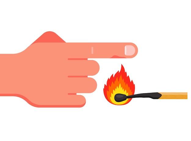 Spal palec wskazujący płonącą zapałką.