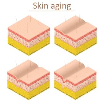Starzenie się skóry zestaw izometryczny widok normalny i zmarszczek naskórka dla plakatu i karty. ilustracja wektorowa