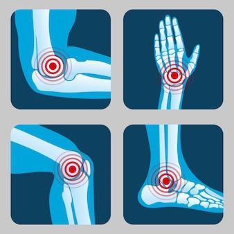 Stawy ludzkie z pierścieniami bólowymi. infografika zapalenie stawów i reumatyzm. przyciski wektorowe aplikacji medycznych