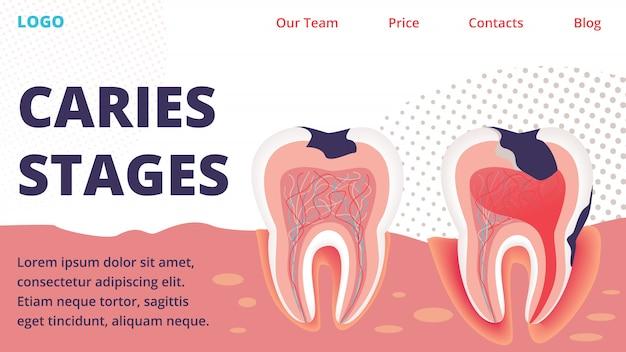 Strona internetowa wektor różnych etapów leczenia próchnicy