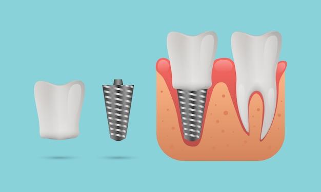 Struktura implantu dentystycznego, zęby ludzkie i implant dentystyczny