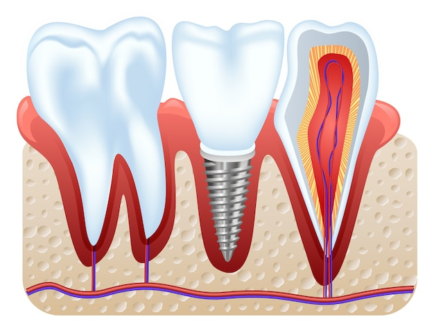 Struktura implantu dentystycznego.