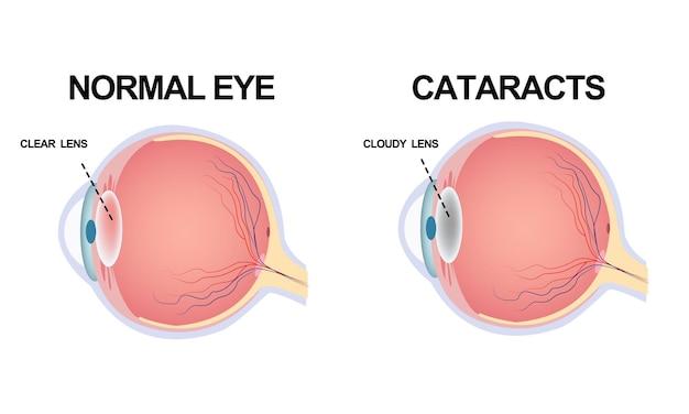 Struktura oka. zaćma.