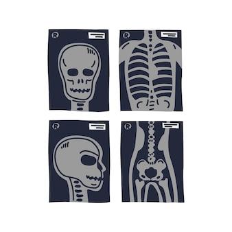 Stylizowane zdjęcia rentgenowskie głowy ludzkiej klatki piersiowej w widoku z przodu i z boku oraz kości biodrowej