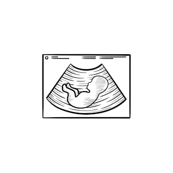 Sylwetka dziecka na usg ręcznie rysowane konspektu doodle ikona. usg ciąży z dzieckiem na to wektor szkic ilustracji do druku, sieci web, mobile i infografiki na białym tle.