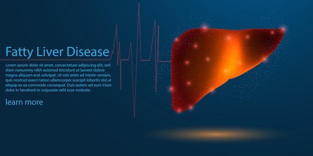Szablon choroby tłuszczowej wątroby