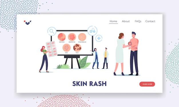 Szablon landing page szablon wysypki skórnej. tiny doctors postacie prezentujące infografiki choroby półpasiec, dermatofitoza, łupież pstry, siniak i bielactwo. ilustracja wektorowa kreskówka ludzie