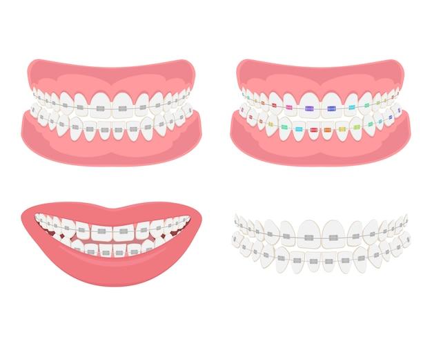 Szczęka zębowa z aparatami ortodontycznymi, prawidłowy zgryz uzębienia.