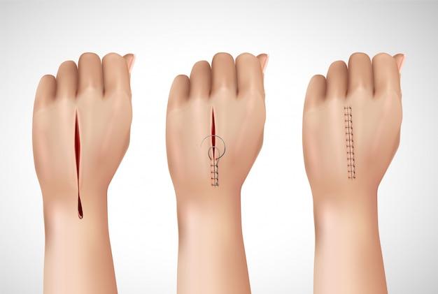 Szwy chirurgiczne łączą realistyczną kompozycję z izolowanymi obrazami ludzkiej ręki na różnych etapach szycia