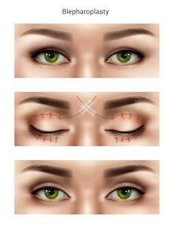 Szwy chirurgiczne łączą realistyczną kompozycję z wizerunkami kobiecych oczu na różnych etapach operacji blepharoplastyki