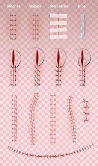Szwy chirurgiczne łączą realistyczny zestaw obrazów na przezroczystych z różnymi kształtami szwów medycznych