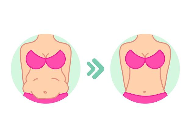 Tłuszcz na brzuchu brzuch przed i po diecie fitness lub liposukcji