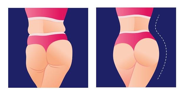 Transformacja tłuszczu, aby dopasować ciało kobieta przed i po diecie odchudzania