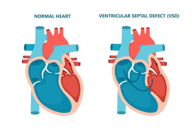 Ubytek przegrody międzykomorowej vsd na białym tle przekrój chorób mięśnia sercowego człowieka