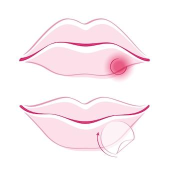 Usta pięknej dziewczyny z opryszczką na zimno bandaż prosty styl ilustracja kontur. ikona część twarz kobiety. dobry do makijażu kosmetyków pielęgnacyjnych.