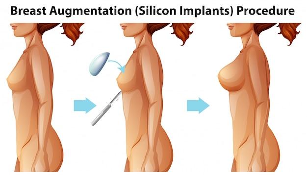 Wektor kobiet implantów piersi