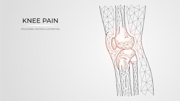 Wielokątna ilustracja wektorowa bólu, zapalenia lub urazu w widoku z boku kolana. anatomia kości ludzkich nóg.