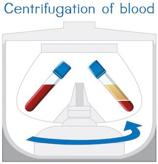 Wirowanie schematu krwi