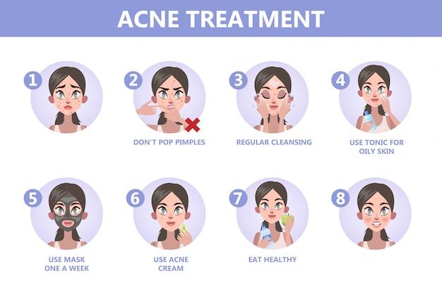 Wskazówki dotyczące leczenia trądziku. jak uzyskać jasne instrukcje dotyczące twarzy. problem z twarzą. opieka zdrowotna i uroda. zaskórniki i pryszcze. ilustracja