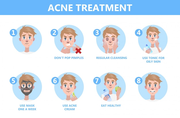 Wskazówki dotyczące leczenia trądziku. jak uzyskać jasne instrukcje dotyczące twarzy.