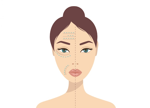 Wstrzyknięcie kwasu hialuronowego do twarzy. uroda, kosmetologia, koncepcja przeciwstarzeniowa. ilustracja wektorowa strzały piękna